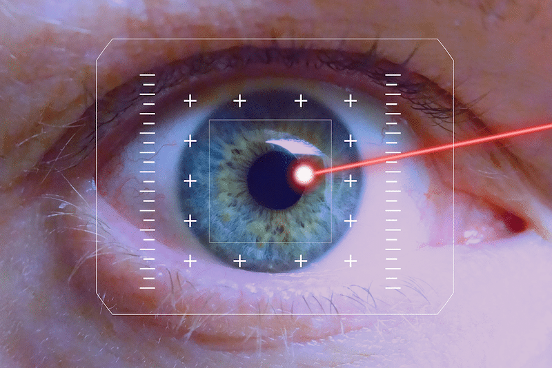 Chirurgie laser yeux prix